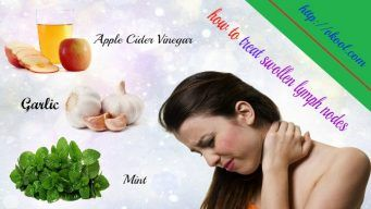 how to treat swollen lymph nodes naturally