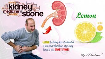 lemon for kidney stones treatment