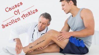possible causes of swollen ankles