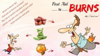 first aid for burns at home