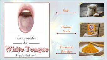 best natural home remedies for white tongue