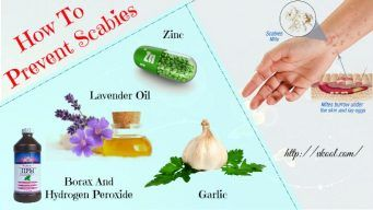 how to prevent scabies at home