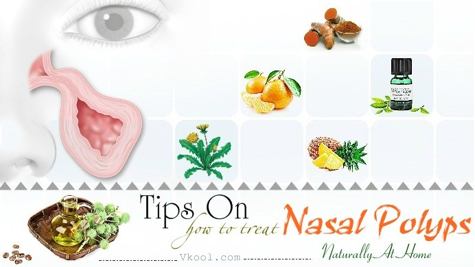 how to treat nasal polyps naturally