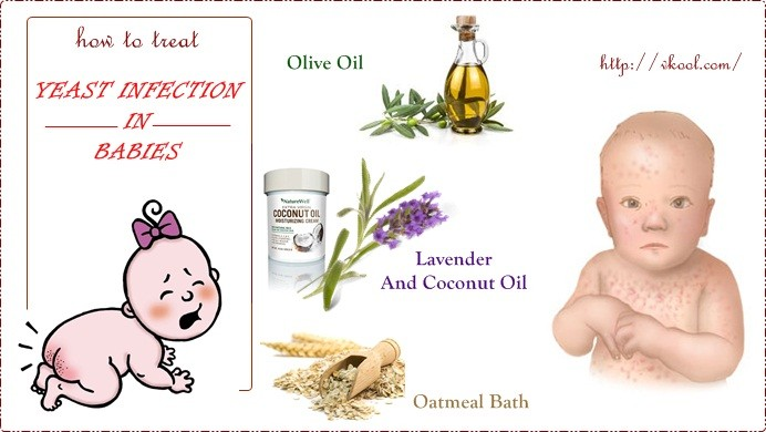 how to treat yeast infection in babies naturally