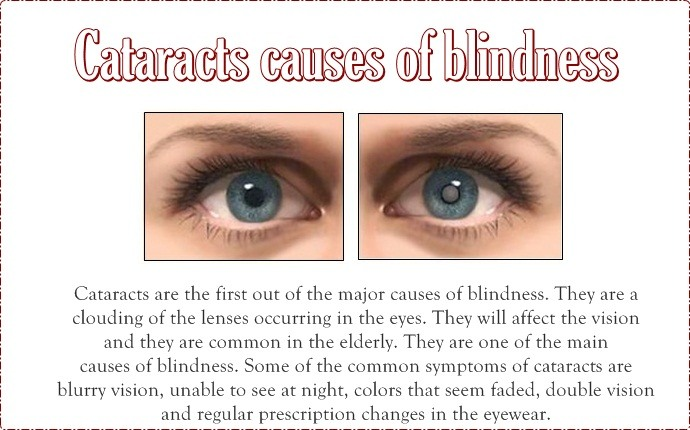 causes of blindness - cataracts