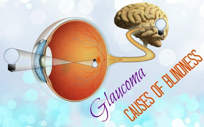 causes of blindness - glaucoma