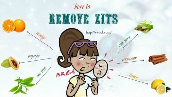 how to remove zits naturally