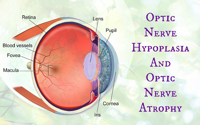 causes of blindness - optic nerve hypoplasia and optic nerve atrophy