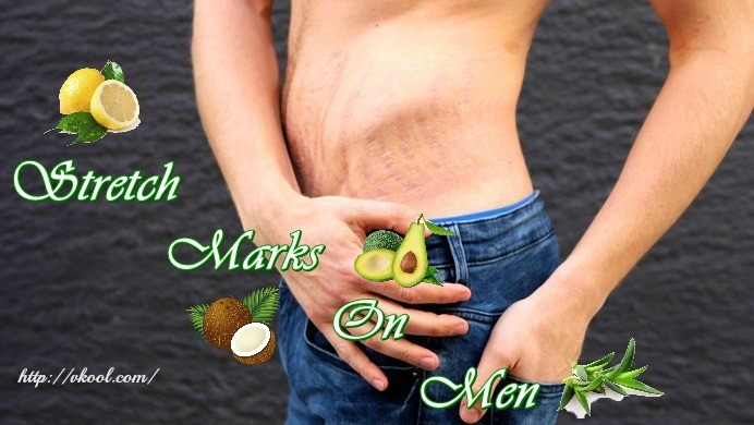 how to remove stretch marks on men