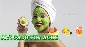 avocado for acne treatment
