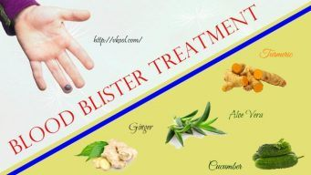 blood blister treatment