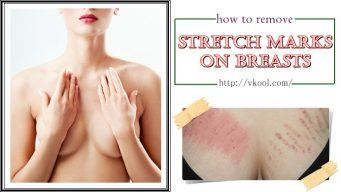 how to remove stretch marks on breasts naturally