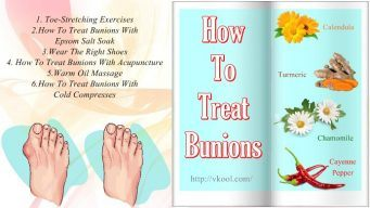 how to treat bunions on feet