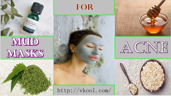 best mud masks for acne