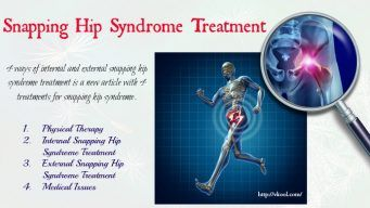 external snapping hip syndrome treatment