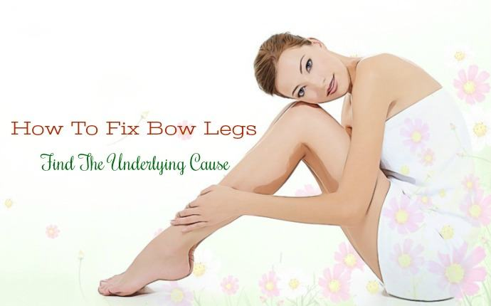 how to fix bow legs - find the underlying cause