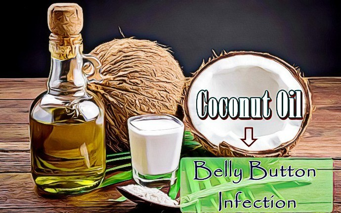 how to treat a belly button infection - coconut oil