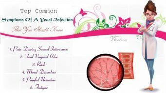 common symptoms of a yeast infection