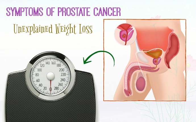 symptoms of prostate cancer - unexplained weight loss